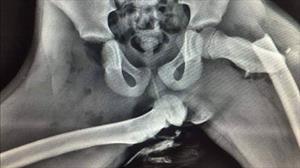 Esta radiografía muestra las terribles consecuencias de viajar con los pies en el tablero