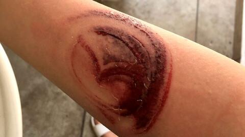 Un accidente causa que el logo de Mazda se marque en el brazo de una mujer